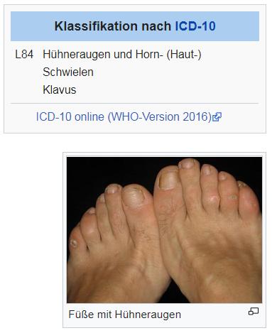 Hühnerauge Wiki©